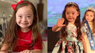 Francesca Rausi, la pequeña modelo con síndrome de Down que causa furor en las redes sociales